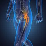hips joint pain